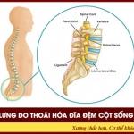 Tìm hiểu về đau lưng do thoái hóa đĩa đệm cột sống