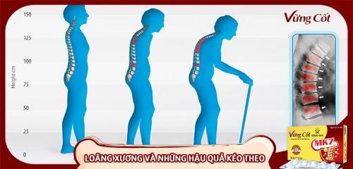 Hậu quả của bệnh loãng xương gây ra