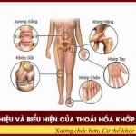 7 dấu hiệu và biểu hiện của thoái hóa khớp