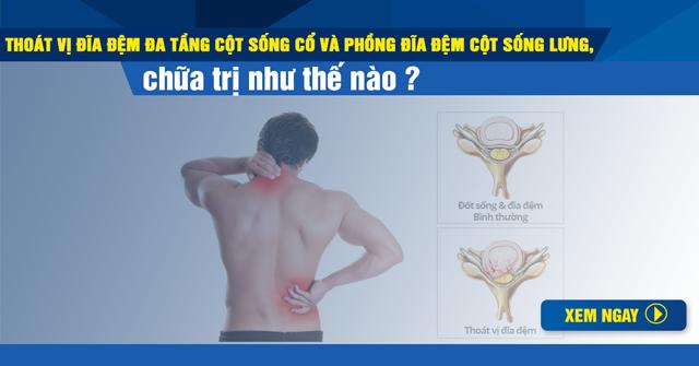 Thoát vị đĩa đệm đa tầng cột sống cổ và phồng đĩa đệm cột sống lưng, chữa trị thế nào?