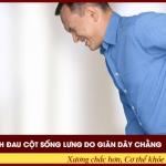 Biểu hiện bệnh đau cột sống lưng do giãn dây chằng