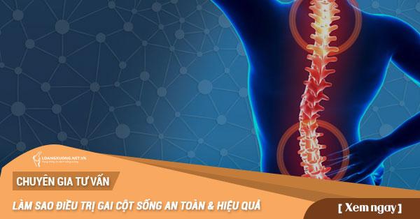 Làm sao chữa trị gai cột sống hiệu quả an toàn